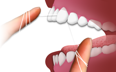 Picture showing proper flossing technique