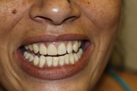 Root canals, crowns and fillings - After