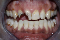 Root canals, crowns and fillings - Before