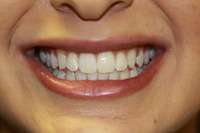 1 hour in office whitening - After