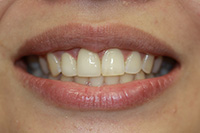 Root Canals and Crowns - After