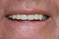 Crowns and Veneers - After