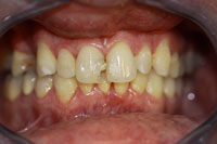 Crowns and Veneers - Before