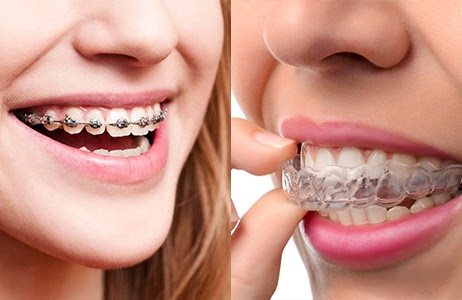 braces vs invisalign