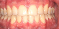 Smile Gallery Patient 2-teeth-after