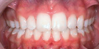 Smile Gallery Patient 9-teeth-after
