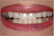Smiling face after veneers treatment from dentist