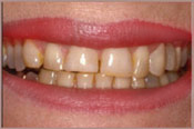 Smiling face before veneers treatment from dentist